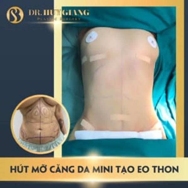 Căng da bụng mini tạo dáng eo thon tại Dr Huy Giang