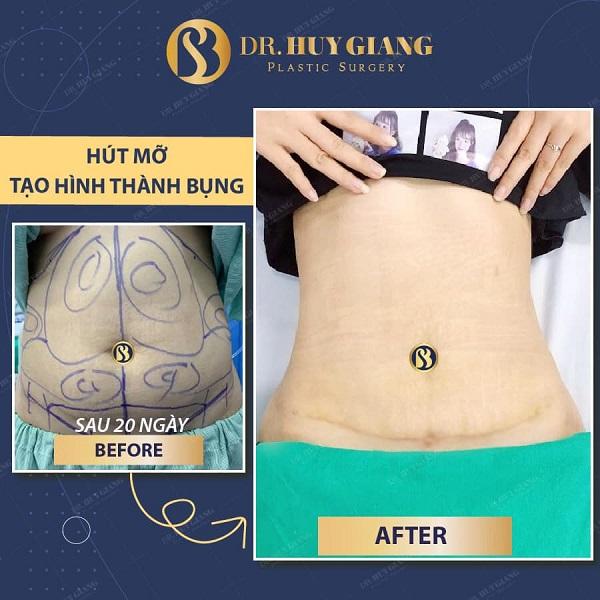 Hình ảnh khách hàng hút mỡ tạo hình thành bụng tại Dr Huy Giang