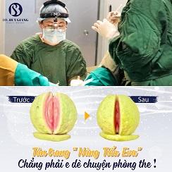 Phẫu thuật thẩm mỹ vùng kín