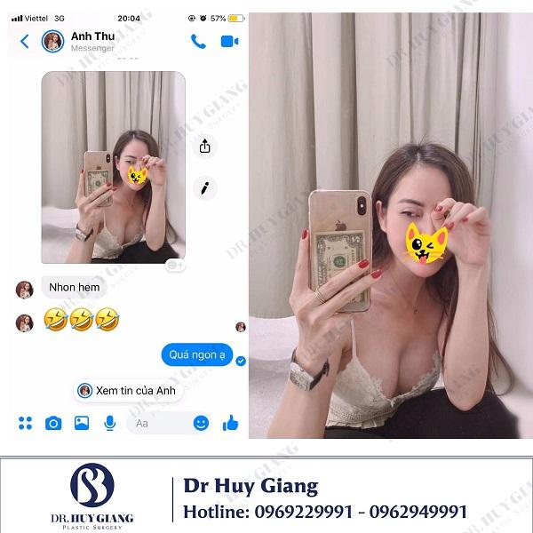 Chia sẻ của khách hàng sau khi nâng ngực tại Dr Huy Giang