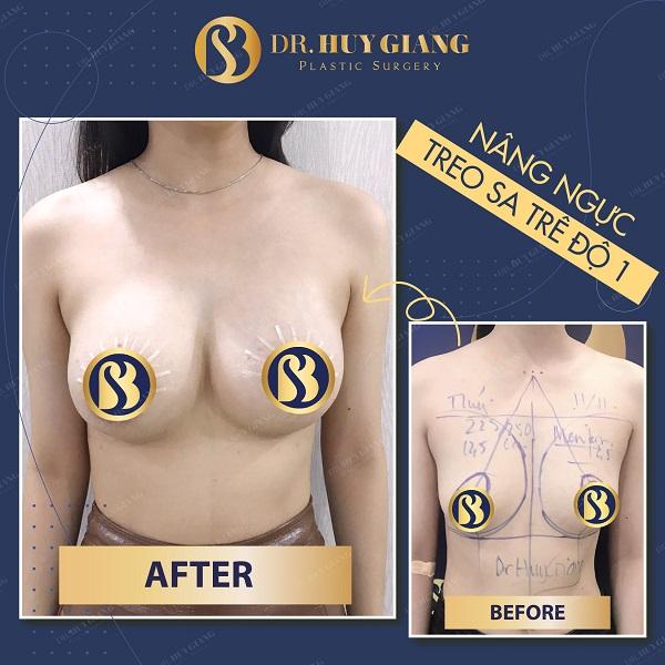 Ảnh thực tế khách hàng trước và sau nâng ngực chảy xệ