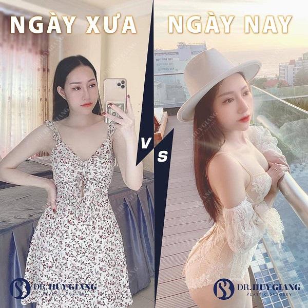 Hình ảnh khách hàng xưa và naysau nâng ngực tại Dr Huy Giang