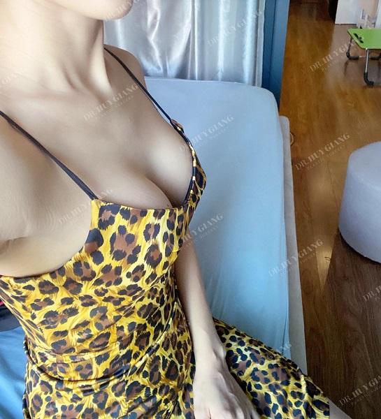 Nguyên nhân ngực không có khe - Cách tạo khe ngực tự nhiên