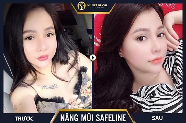 Hình ảnh kết quả khách hàng trước và sau nâng mũi tại Dr Huy Giang