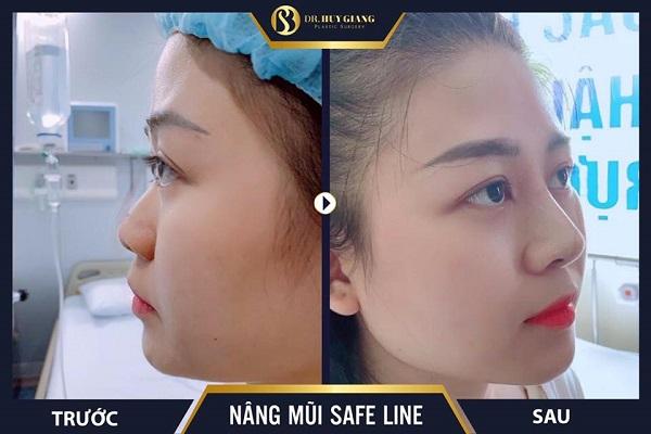 Hình ảnh khách hàng trước và sau nâng mũi tại Dr Huy Giang