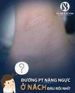 Cách hạn chế sẹo sau nâng ngực