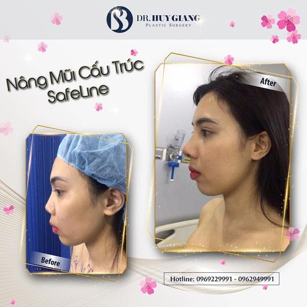 Ảnh khách hàng trước và sau nâng mũi tại Dr Huy Giang