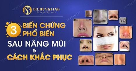 sửa mũi phẫu thuật hỏng