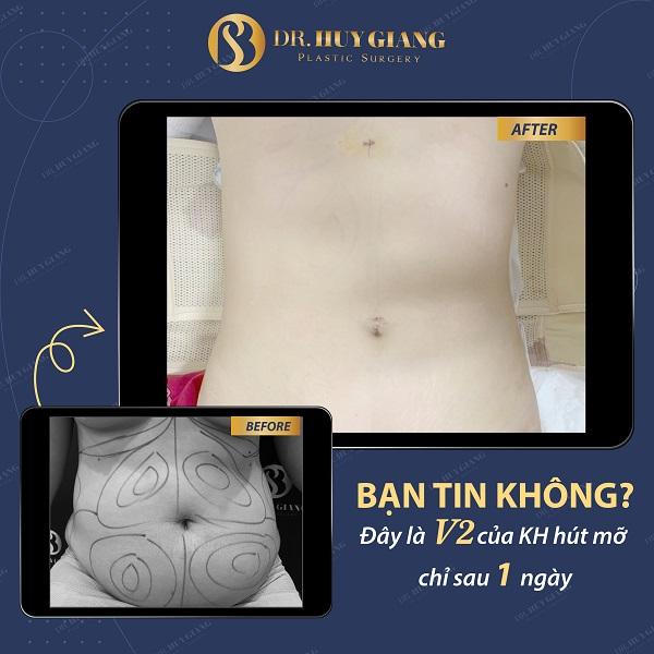 Kết quả hút mỡ bụng sau 1 ngày tại Dr Huy Giang